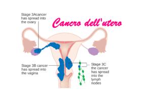 tumore dell'utero