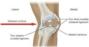 rimedio naturale per rinforzare le ginocchia