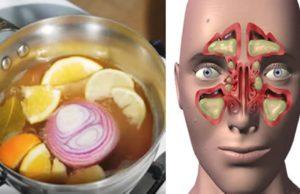 congestione nasale