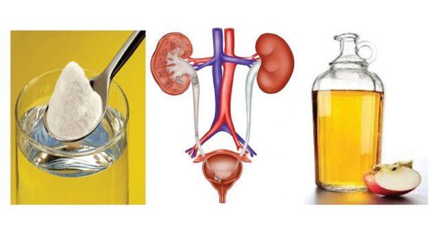infezioni urinarie
