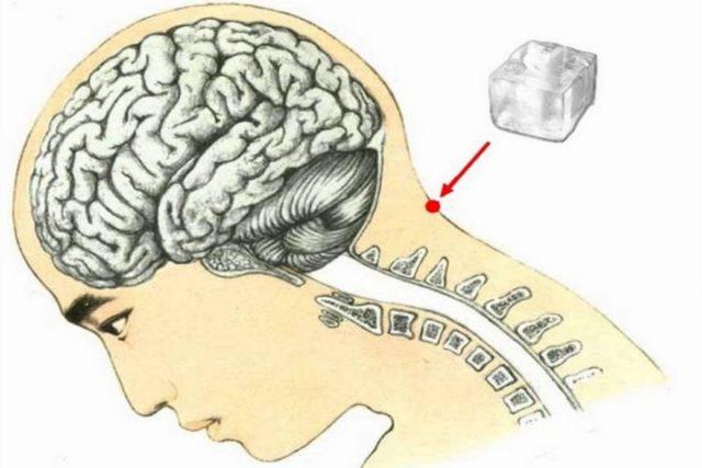 cubetto di ghiaccio tra testa e collo