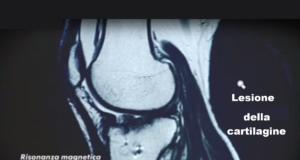 lesione della cartilagine