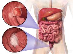 svuotare l'intestino