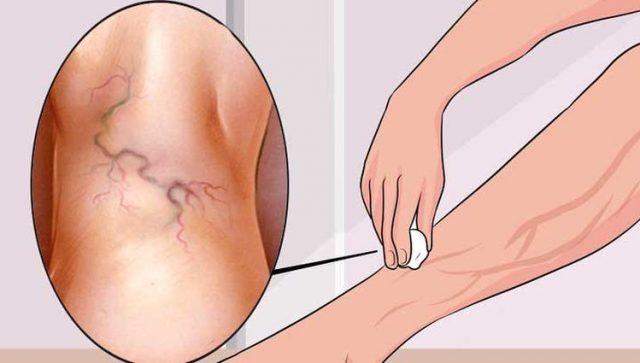 il rimedio naturale che elimina le vene varicose