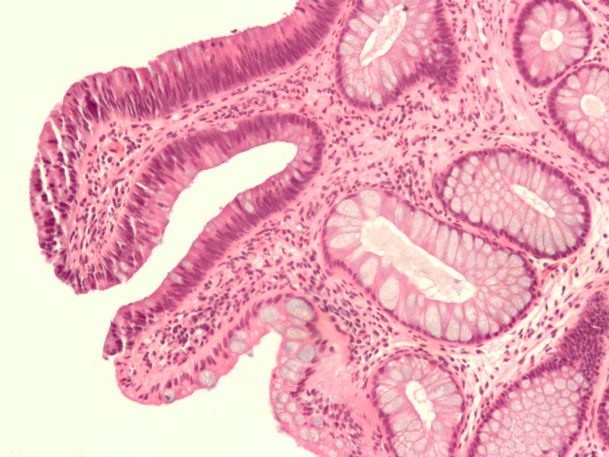 10 cose che causano il cancro