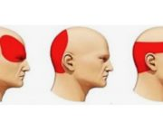 alleviare il mal di testa
