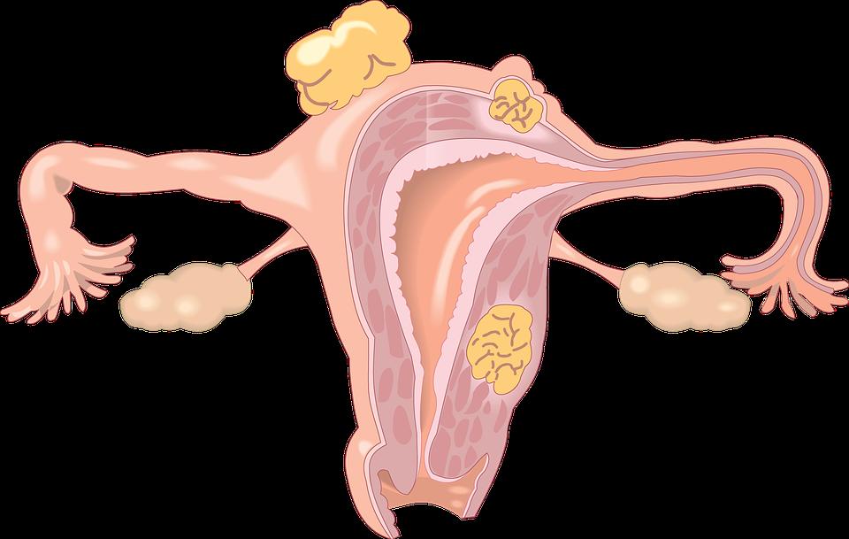 mioma e cisti ovariche