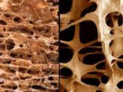 distruggendo le nostre ossa