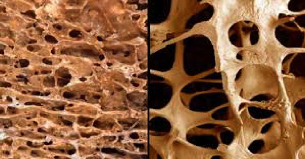Restauro di una potenzialità dopo eliminazione di un cancro della prostata