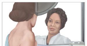 cura per il cancro al seno senza chemioterapia