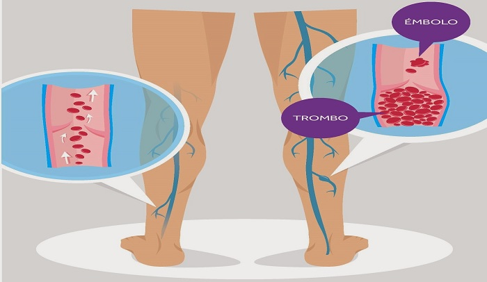 trombosi venosa alle gambe