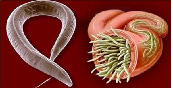 espellere i parassiti