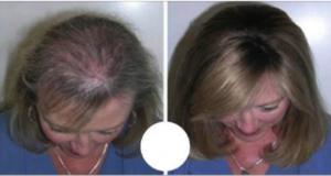 olio che fa ricrescere i capelli