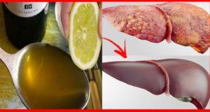 disintossicare il fegato grasso