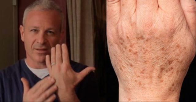 rimedio naturale per eliminare le macchie della pelle