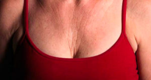 rughe sul collo e sul seno