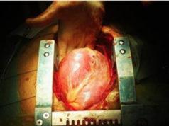 vera causa delle malattie cardiache