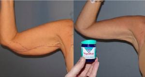 eliminare il grasso dalle braccio