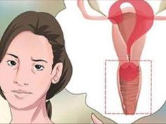 arrivo della menopausa