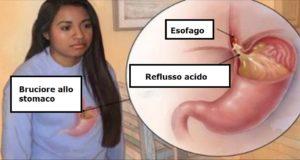 reflusso acido