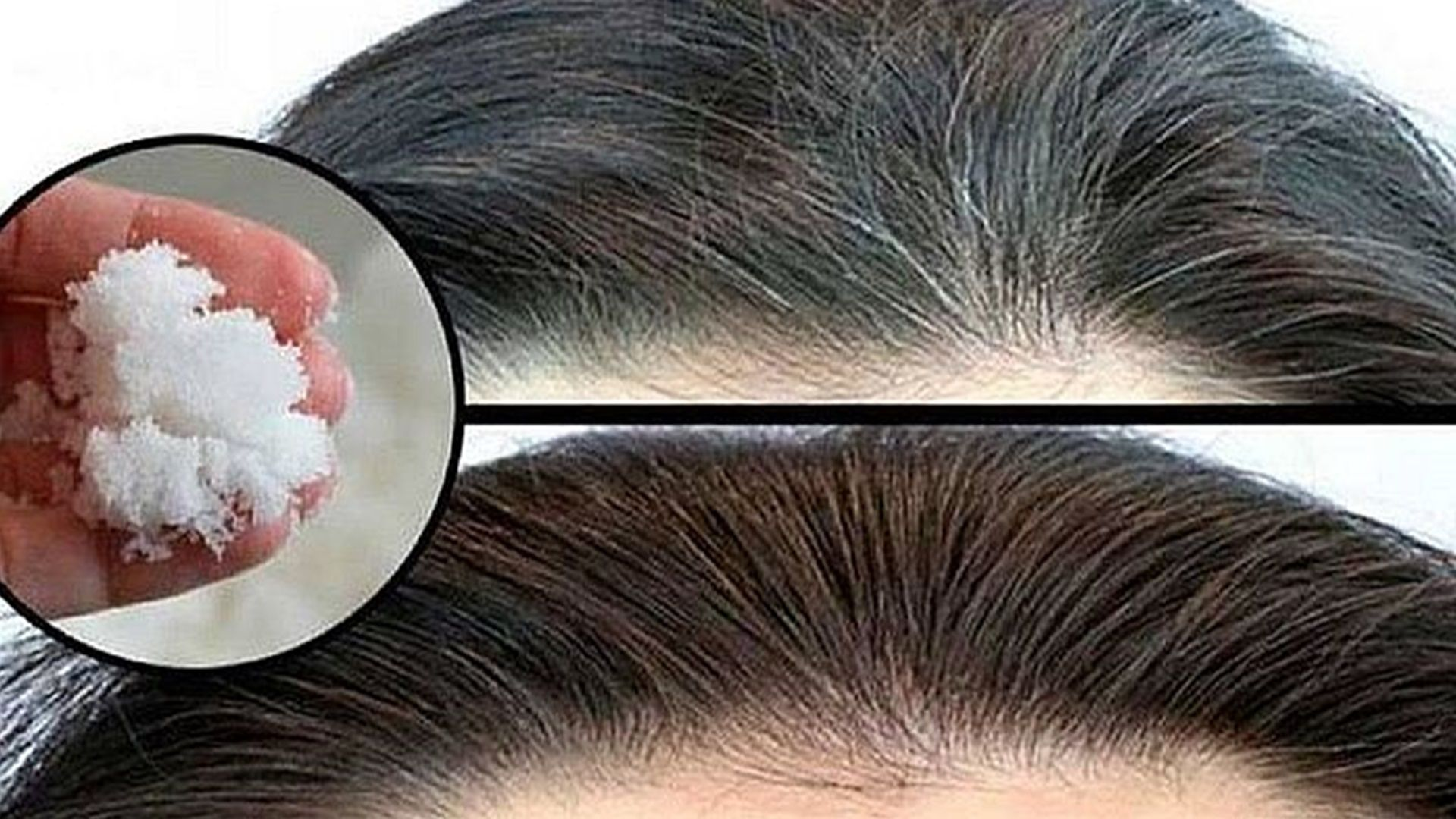 premium selection bbbec f6709 Dì addio ai capelli grigi e alla caduta dei capelli con il ...
