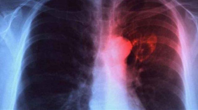 pulizia dei polmoni