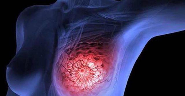 nuova terapia che distrugge il tumore al seno