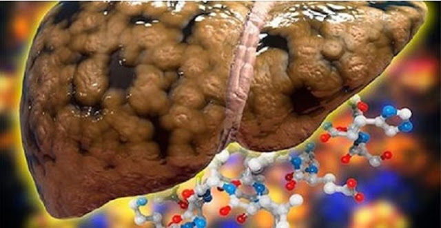 curare il fegato grasso