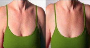 rughe sul seno e sul collo